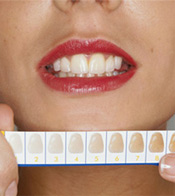 Dental Bleaching and Whitening